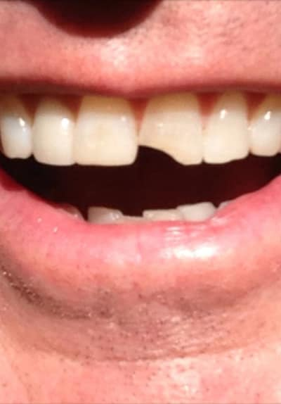 Jim Carrey Dumb and Dumber To Tooth